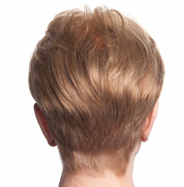 Womens Hair Replacement System - after