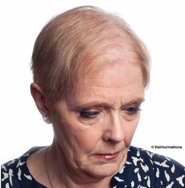 Womens Hair Replacement System - before