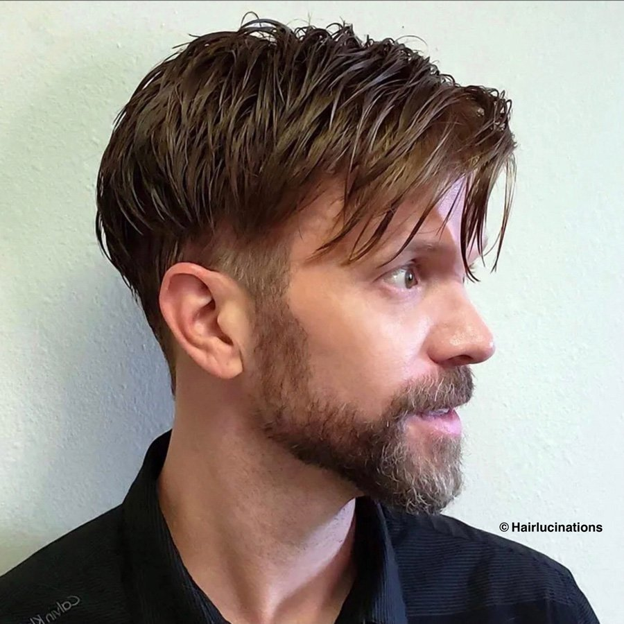 mens hair replacement systems
