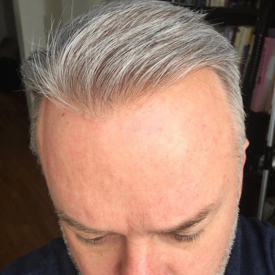 mens hair replacement system grey